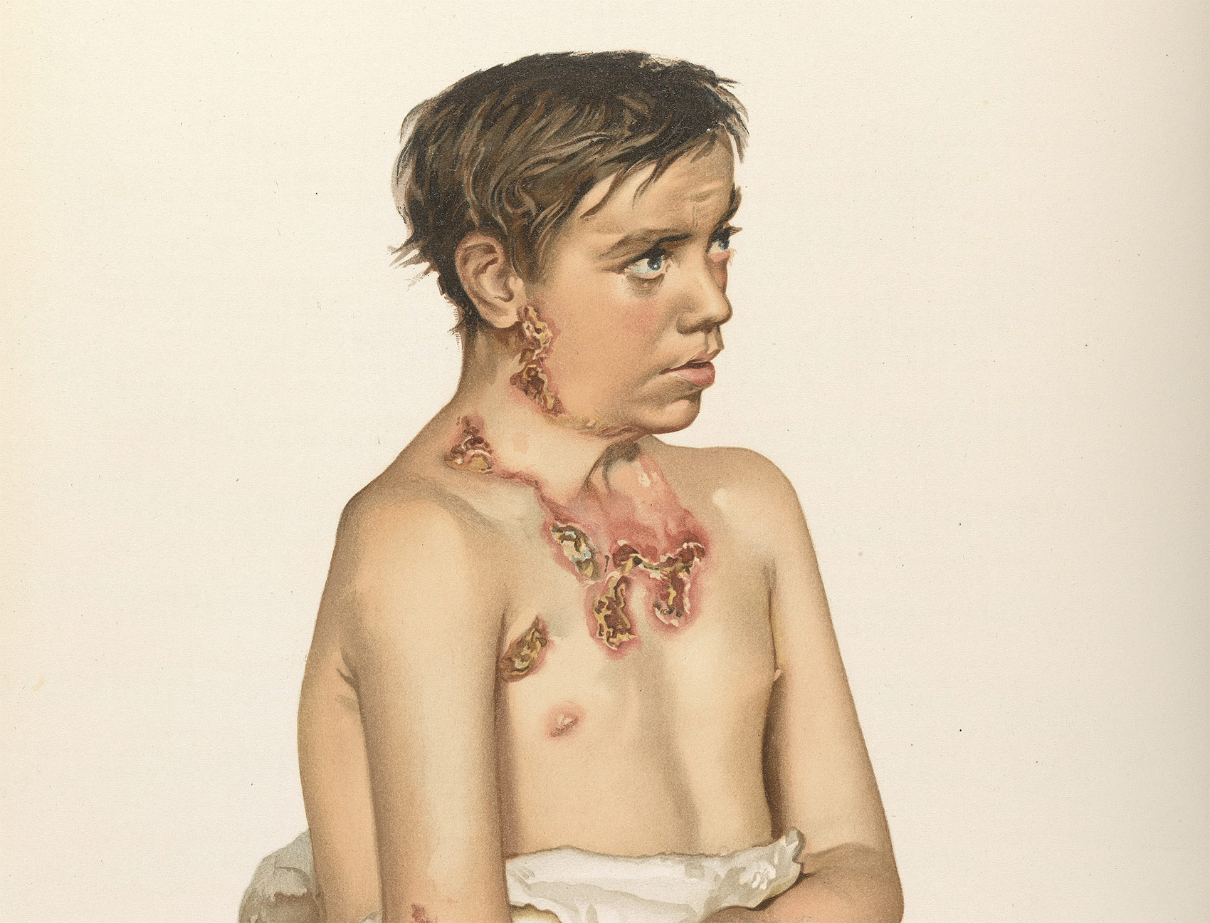 'A young man with scrofula', Atlas of Clinical Medicine, 1892-96.