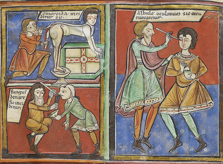 Doctor's orders: illustrations of operations for haemorrhoids, nasal polyps and the eye, England or France, c.1190. © British Library Board/Bridgeman Images.