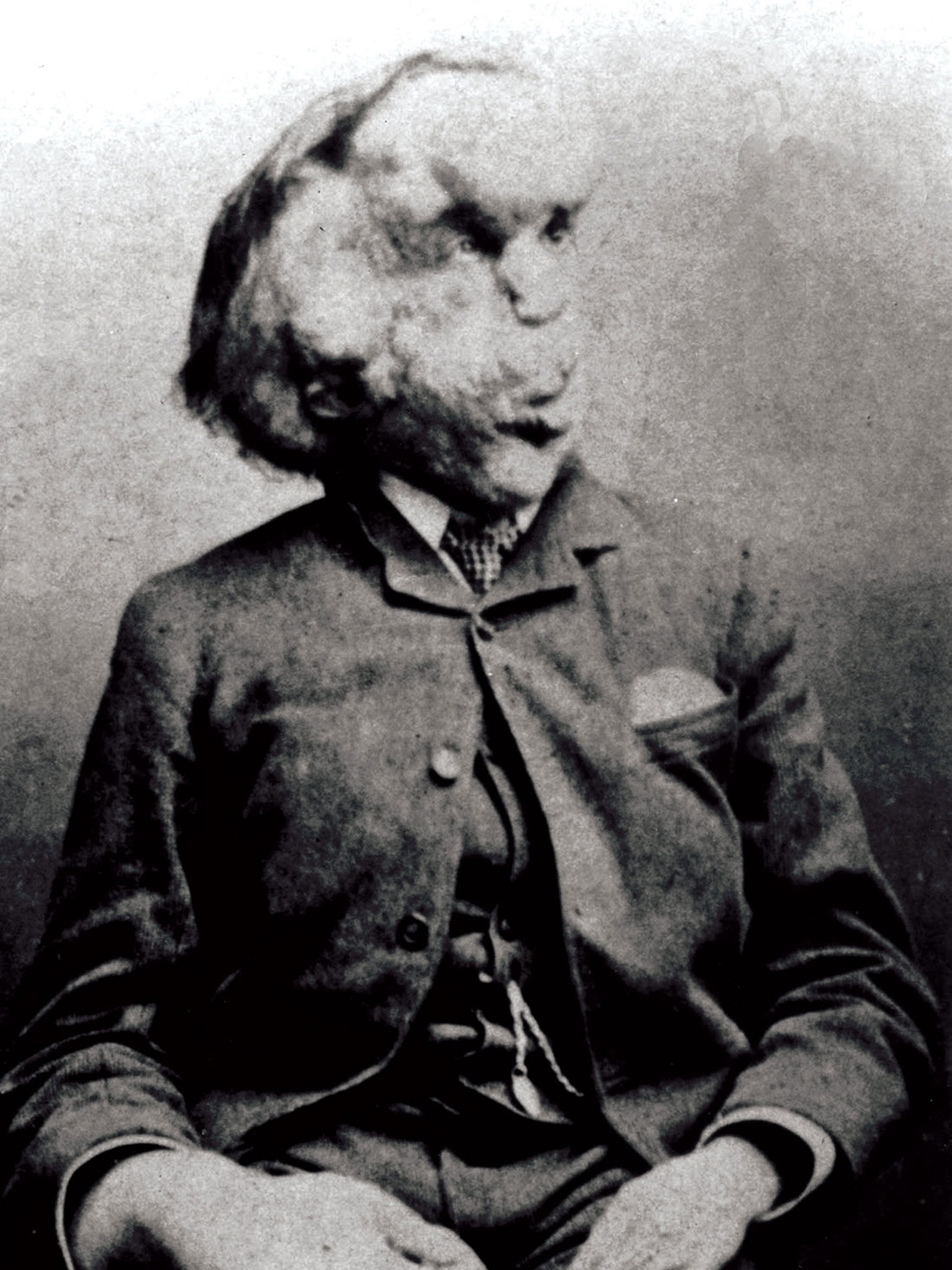 Joseph Carey Merrick, 'the Elephant Man', late 19th century.